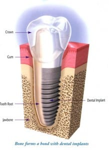 implantanatomy