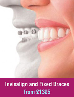 offer-invisalign