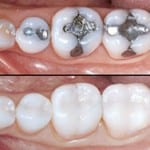 tooth coloured restorations Manchester