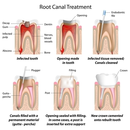 Root Canal Treatment Manchester