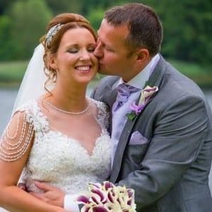 Wedding invisalign braces manchester