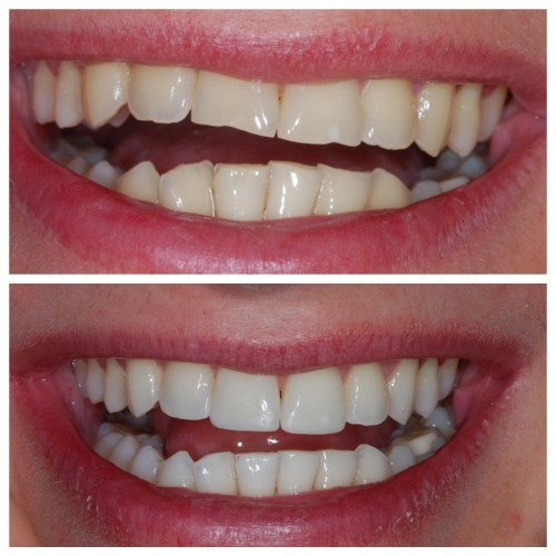 The Cost Of A Smile Makeover Needn T Be Expensive Sale Dental Spa